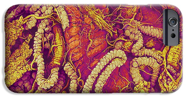 Gut iPhone Cases - Hover Fly Gut, Sem iPhone Case by Susumu Nishinaga
