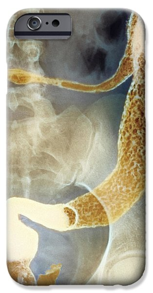 Gastroenterology iPhone Cases - Inflamed Colon And Rectum, X-ray iPhone Case by Cnri