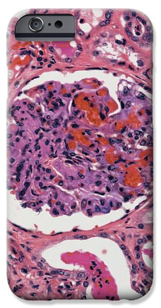 Inflamed Kidney, Light Micrograph iPhone Case by Steve Gschmeissner