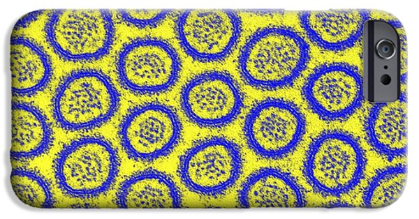 Microvillus iPhone Cases - Intestinal Microvilli, Tem iPhone Case by