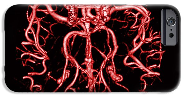 Abnormal iPhone Cases - Intracranial Ct Angiogram iPhone Case by Medical Body Scans