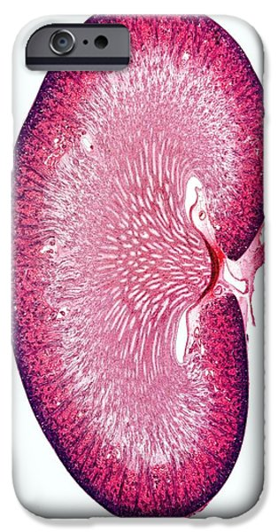 Cut-outs iPhone Cases - Kidney, Light Micrograph iPhone Case by Dr Keith Wheeler
