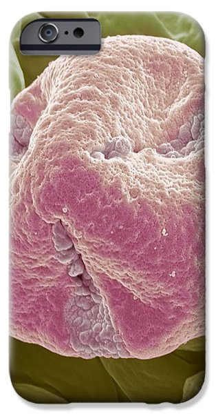 Kiwi Fruit Pollen Grain, Sem iPhone Case by Steve Gschmeissner
