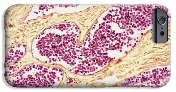 Proliferate iPhone Cases - Leukaemia Blood Cells, Light Micrograph iPhone Case by Steve Gschmeissner