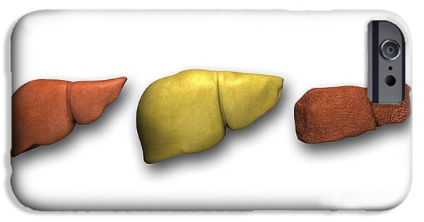 Disorder iPhone Cases - Liver: Normal, Fatty, Cirrhotic iPhone Case by Pasieka