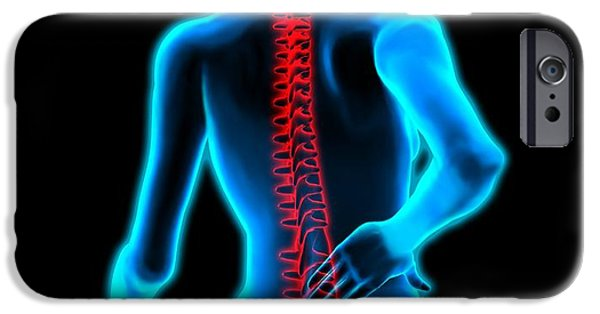 Disc iPhone Cases - Lower Back Pain iPhone Case by Roger Harris