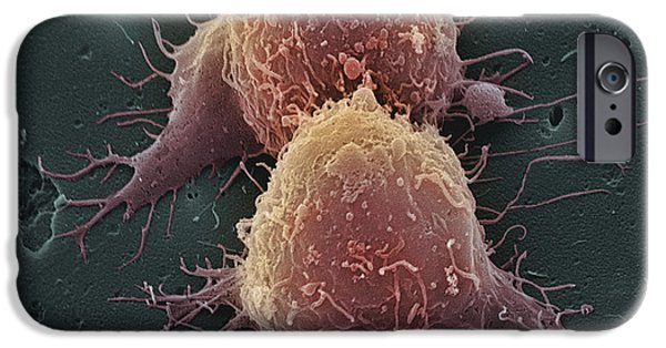 Cancerous iPhone Cases - Lung Cancer Cell Division iPhone Case by Steve Gschmeissner