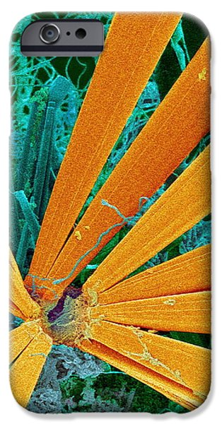 Marine Diatom Algae, Sem iPhone Case by Susumu Nishinaga