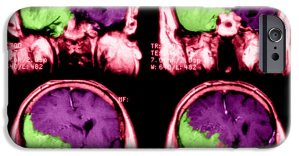 Malignant iPhone Cases - Meningioma iPhone Case by Medical Body Scans
