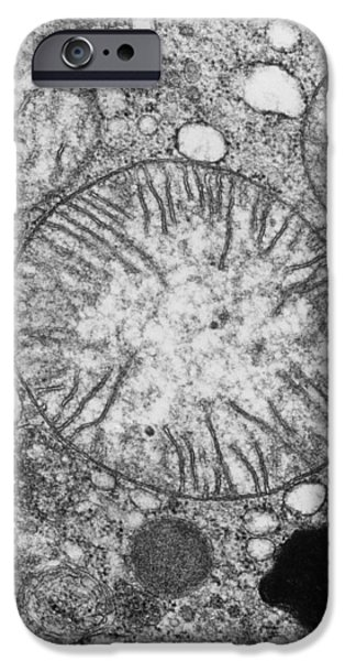 Atp Photographs iPhone Cases - Mitochondria In Cross Section iPhone Case by Dr Gopal Murti