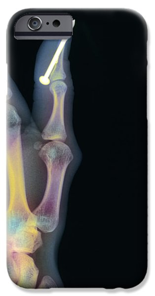Diy iPhone Cases - Nail In Thumb X-ray iPhone Case by