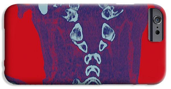 Disc iPhone Cases - Normal Neck, Ct Scan iPhone Case by Miriam Maslo