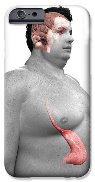 Eating Disorders iPhone Cases - Obese Mans Stomach, Artwork iPhone Case by Sciepro