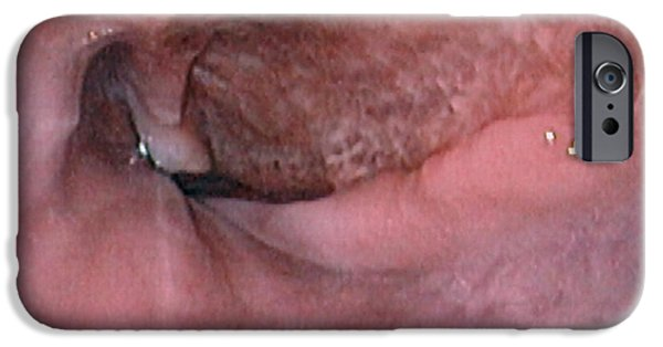Endoscope iPhone Cases - Oesophagus Ulcer iPhone Case by David M. Martin, Md