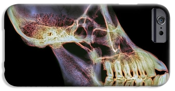 Orangutan iPhone Cases - Orangutan Skull, X-ray iPhone Case by D. Roberts