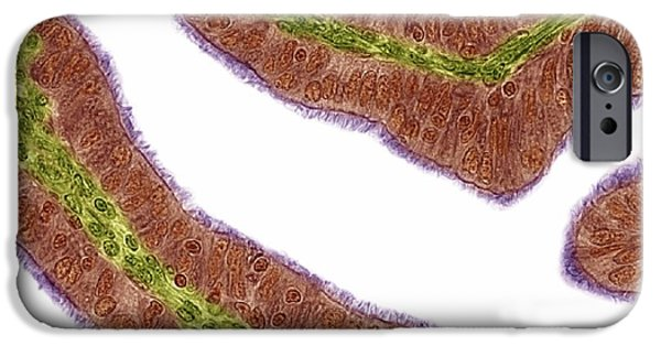 Mucosa iPhone Cases - Oviduct Mucosal Folds, Light Micrograph iPhone Case by Steve Gschmeissner