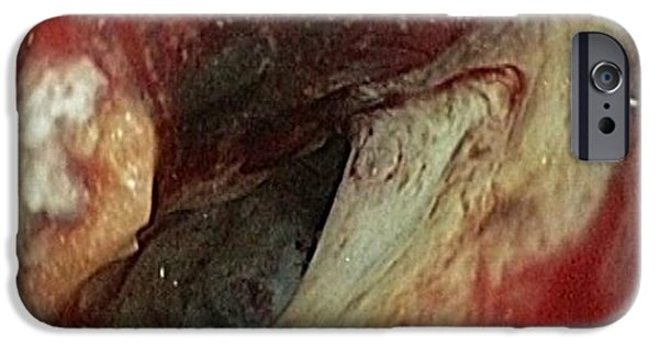 Endoscopy iPhone Cases - Pancreatic Cancer In The Duodenum iPhone Case by Gastrolab