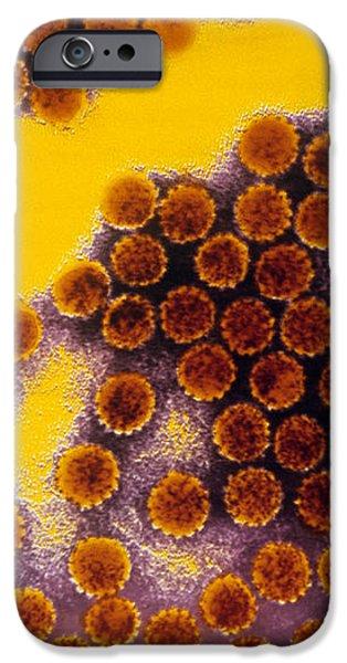 Papillomavirus Particles, Coloured Tem iPhone Case by Cnri