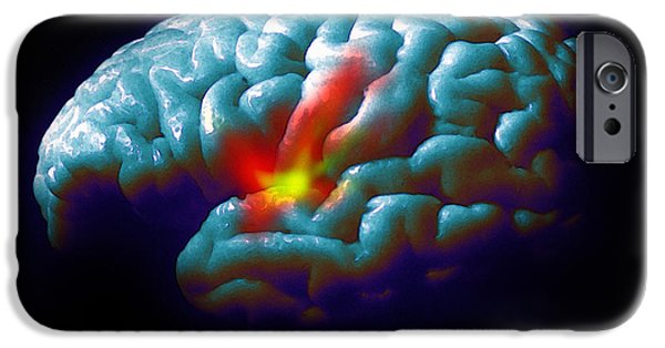 Disorder iPhone Cases - Parkinsons Disease iPhone Case by David Gifford