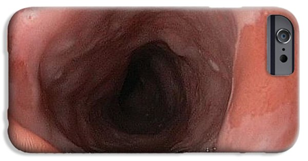 Endoscopy iPhone Cases - Patch Of Abnormal Oesophagus Cells iPhone Case by Gastrolab