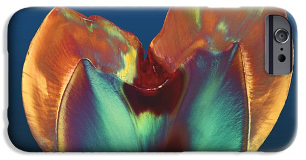 Disorder iPhone Cases - Polarised Lm Of A Molar Tooth Showing Decay iPhone Case by Volker Steger