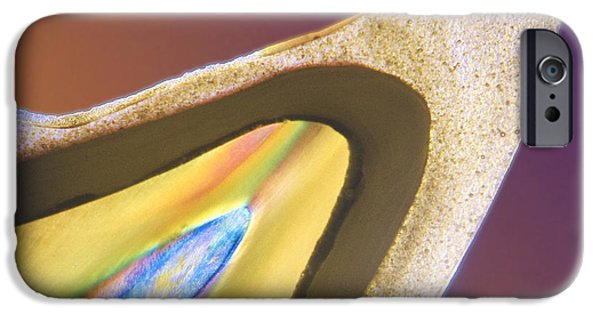 Disorder iPhone Cases - Polarised Lm Of A Tooth With A Dental Crown iPhone Case by Volker Steger