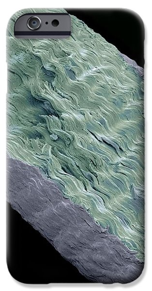 Primate Hand Tendon, Sem iPhone Case by Steve Gschmeissner