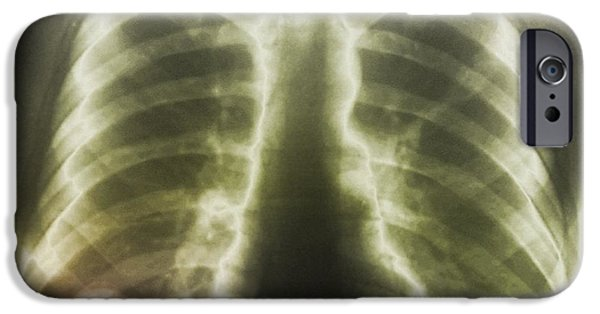 Abnormal iPhone Cases - Pulmonary Tapeworm Cysts, X-ray iPhone Case by Zephyr