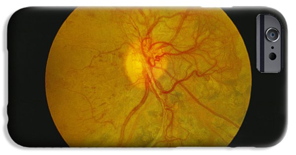 Disorder iPhone Cases - Retina Damage In Diabetes iPhone Case by Paul Parker