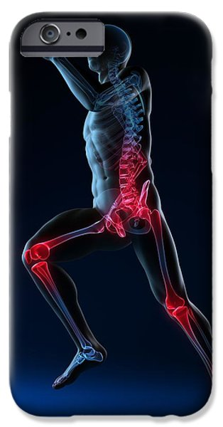 Running Injuries, Conceptual Artwork iPhone Case by Sciepro