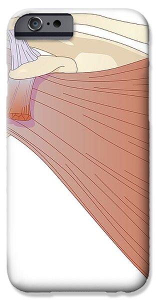 Shoulder Muscles, Artwork iPhone Case by Peter Gardiner