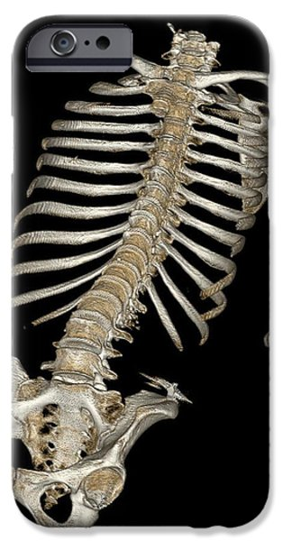 Virtual iPhone Cases - Skeletal Reconstruction iPhone Case by Science Source