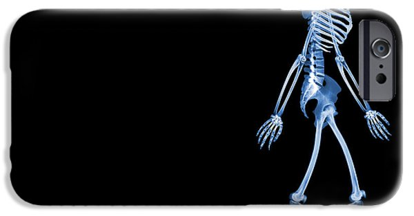 Wildlife Imagery iPhone Cases - Skeletons Of A Human And Rats, X-ray iPhone Case by D. Roberts