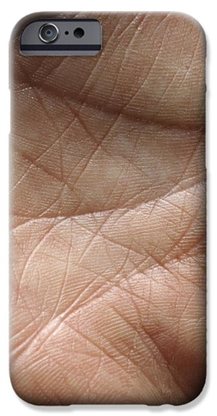 Skin iPhone Case by Mike Devlin
