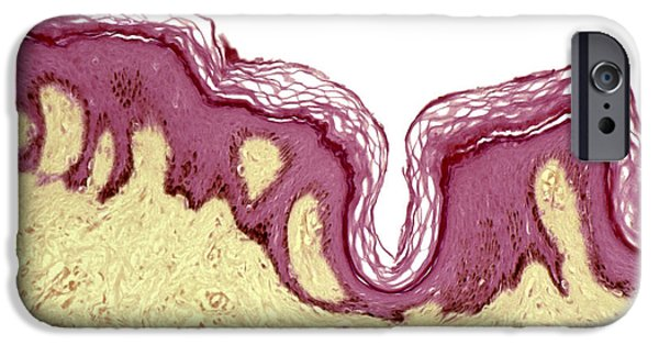 Abnormal iPhone Cases - Skin Pigmentation In Addisons Disease iPhone Case by Steve Gschmeissner