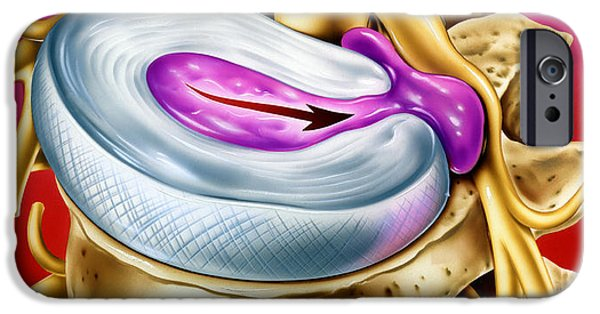 Disc iPhone Cases - Slipped Disc iPhone Case by John Bavosi