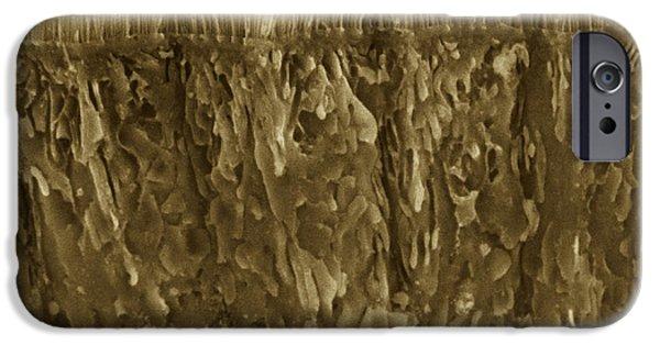 Microvillus iPhone Cases - Small Intestine Microvilli, Sem iPhone Case by Thomas Deerinck, Ncmir