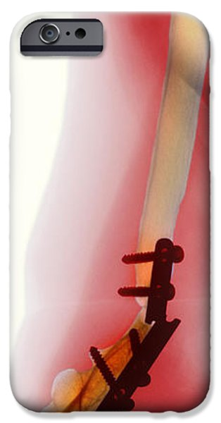 Snapped Plate On Broken Arm, X-ray iPhone Case by