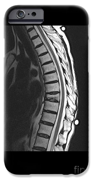 Abnormal iPhone Cases - Spinal Compression Fracture iPhone Case by Medical Body Scans