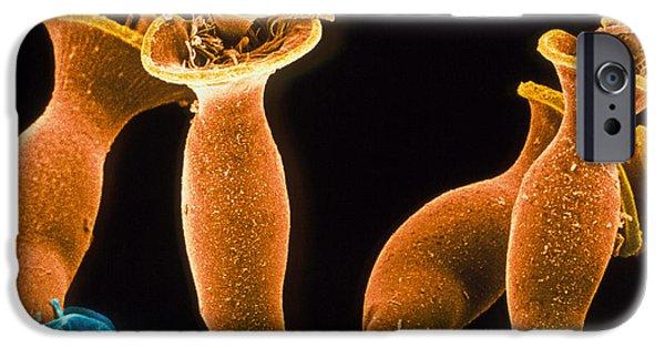 Protozoa iPhone Cases - Spirochona Protozoa iPhone Case by Volker Stegerchristian Bardele