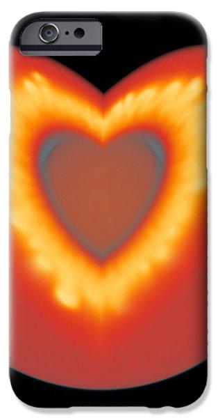 Supernova Explosion iPhone Case by Leonhard Scheck