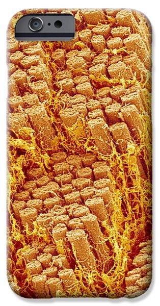 Trachea Muscle, Sem iPhone Case by Susumu Nishinaga
