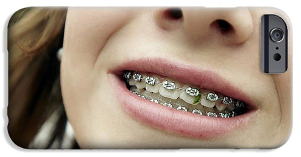 Technology iPhone Cases - Trapped Food In Dental Braces iPhone Case by Tony Mcconnell