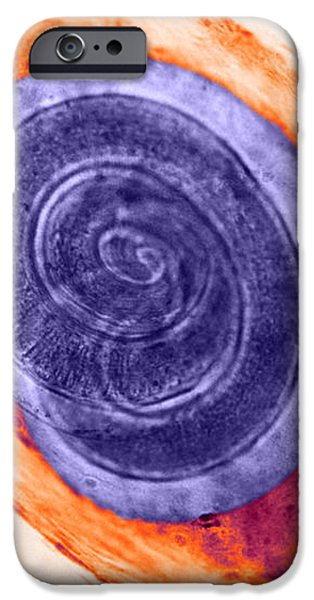 Trichinella In Muscle Lm iPhone Case by Omikron