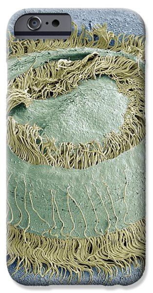Trichodina Parasite, Sem iPhone Case by Steve Gschmeissner