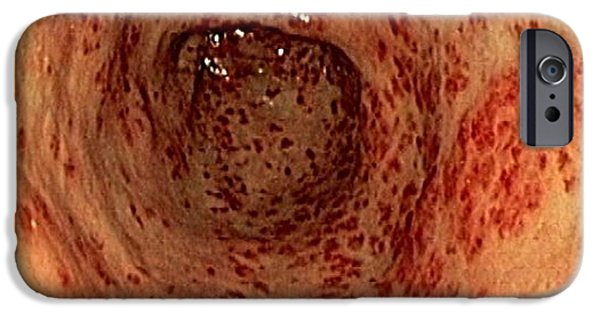 Endoscope iPhone Cases - Vascular Ectasia In The Stomach iPhone Case by Gastrolab