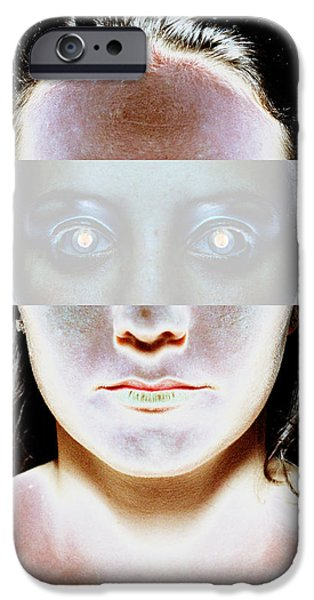 Face Recognition iPhone Cases - Vision iPhone Case by Neal Grundy