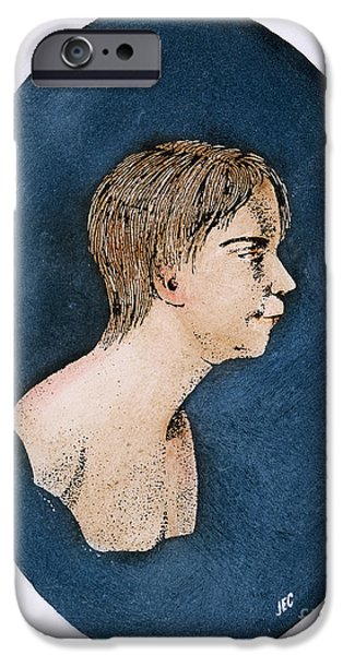 1801 iPhone Cases - Wild Boy Of Aveyron iPhone Case by Granger