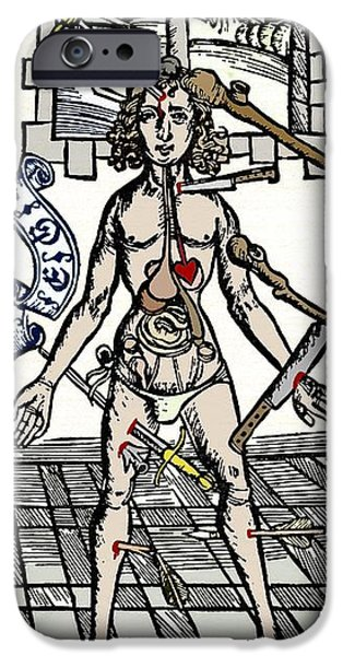 Gut iPhone Cases - Wound Sites, 15th Century Artwork iPhone Case by Sheila Terry