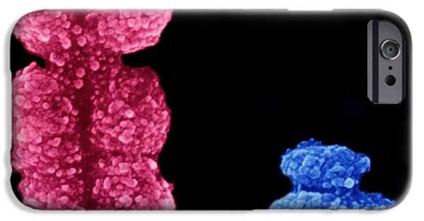 Scanning Electron Microscope Photographs iPhone Cases - X And Y Chromosomes iPhone Case by